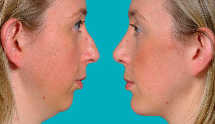 chirurgia-maxillo-facciale-e-chirurgia-plastica-armonia-centro-polispecialistico-mantova-01-934498397
