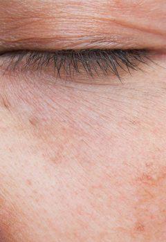 Macchie solari sulla pelle: come rimuoverle?