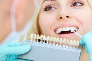 Denti gialli: ecco quali sono le cattive abitudini da evitare